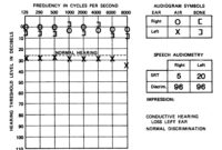 1000 Images About Audiology On Pinterest Pitch Cochlear with Blank Audiogram Template Download