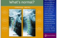 Normal Vs. Abnormal Cervical X-Ray – Chiropractic Biophysics regarding Chiropractic X Ray Report Template